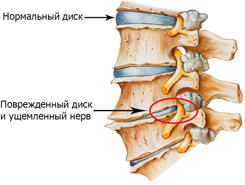 osteochondritis