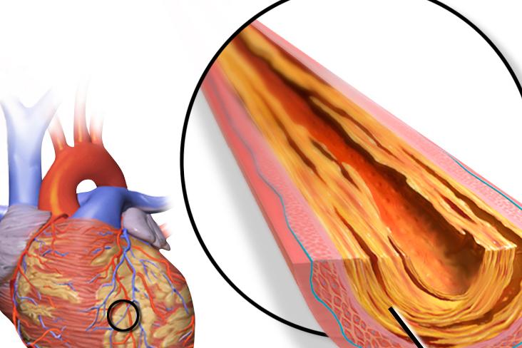 CoronaryArtery