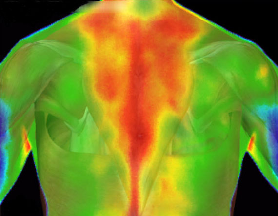 digital-infrared-thermal-imaging-of-the-back