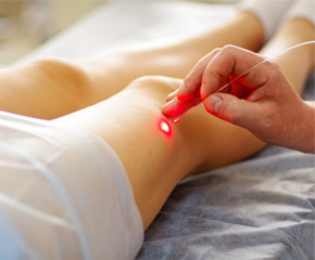 vein-laser-treatment