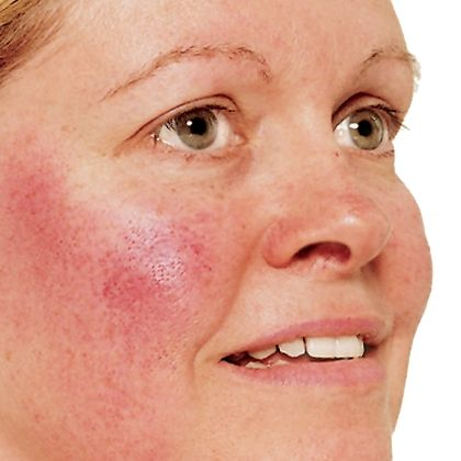 Insidious-Red-Face-Symptoms-and-Appearance.jpg444ecf