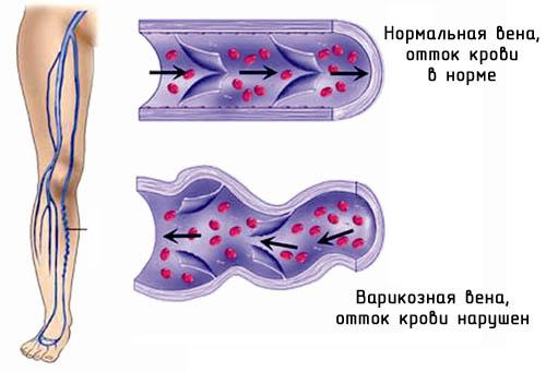 shema-razvitiya-varikoznogo-rasshireniya-ven